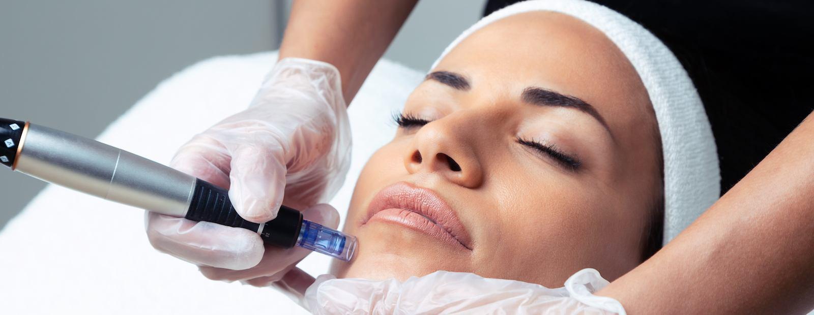 Lady Grace Nail and Skin Centre Dermapen Facial Treatment